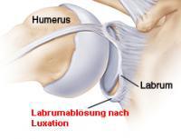 Schulterluxation-Bild-1